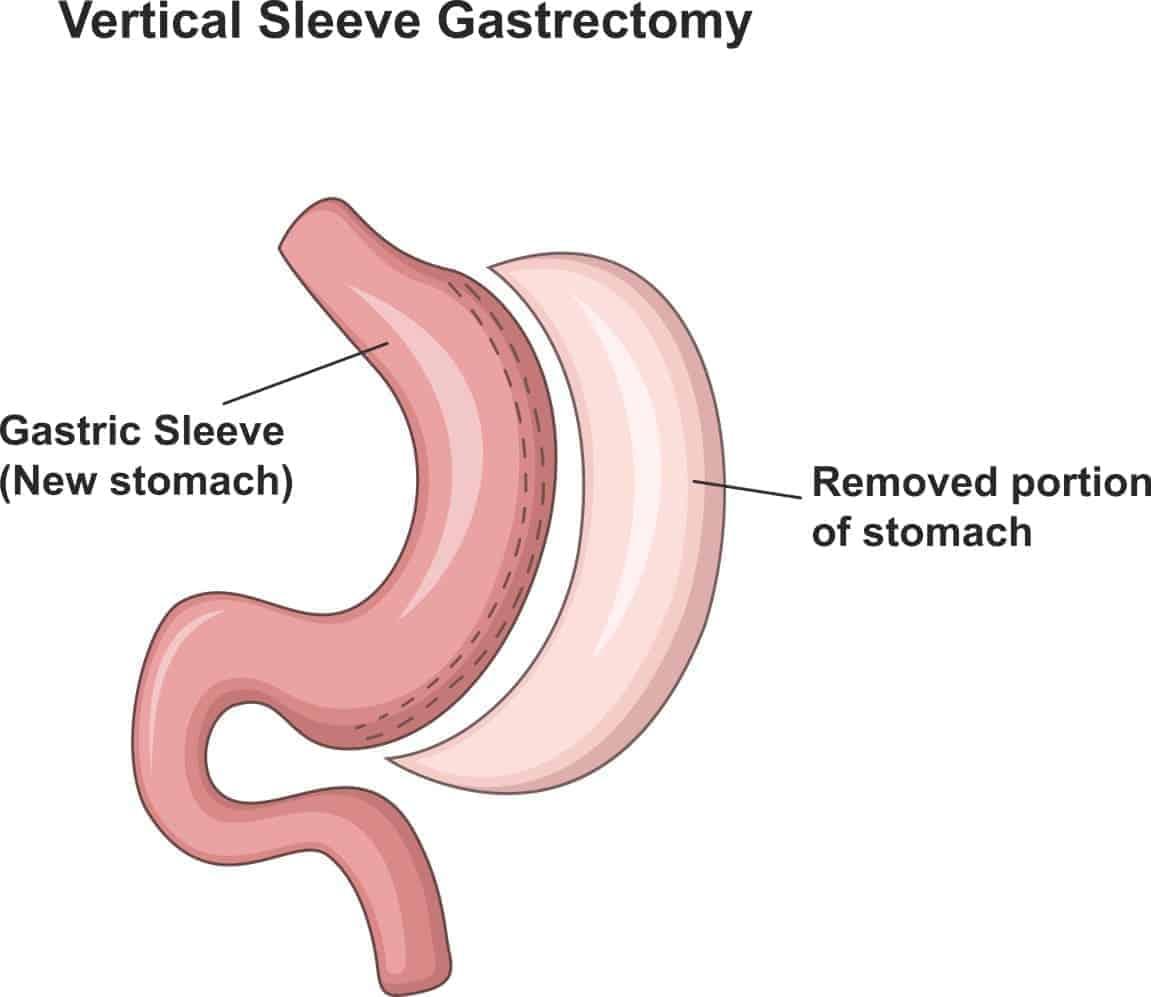 Procedures - John Jorgensen Weightloss Surgery Sydney